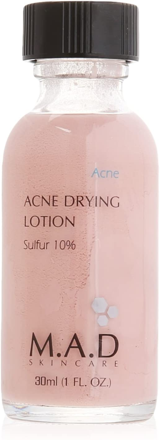 MAD Acne Drying Lotion Sulfur 10%