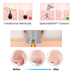 Beauty Tips🤩Vacuum Pore Cleaner Pro