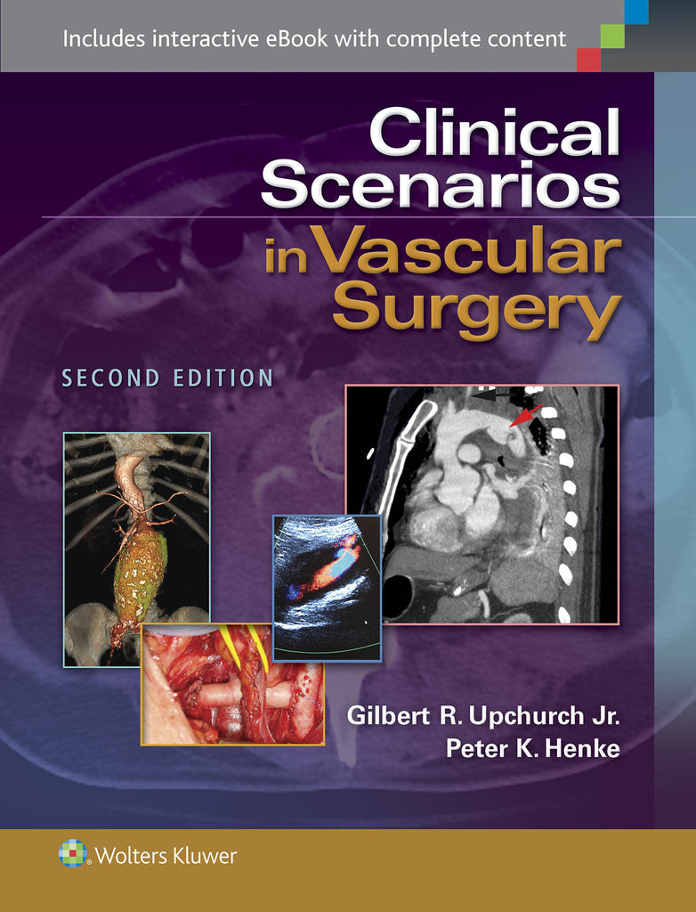 Clinical Scenarios in Vascular Surgery | Zookal Textbooks | Zookal Textbooks