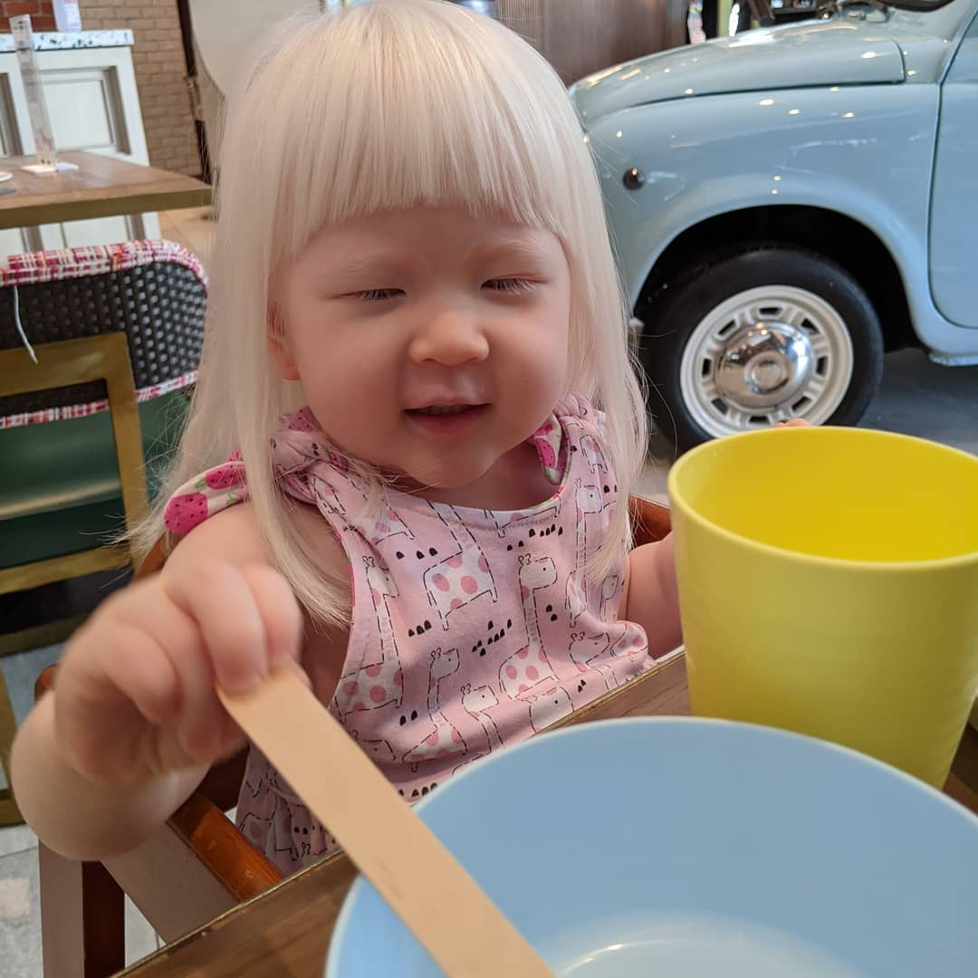 Cotton Pigs | The joys and challenges of raising a child with albinism 3
