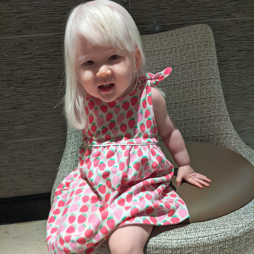 Cotton Pigs | The joys and challenges of raising a child with albinism 4