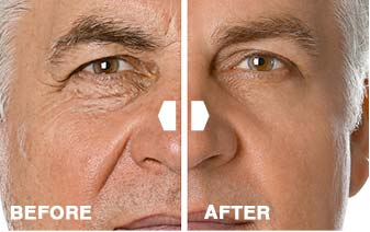DermaSet Before After