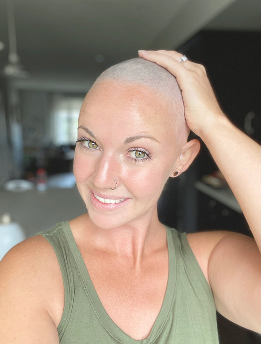 Alopecia Awareness Month