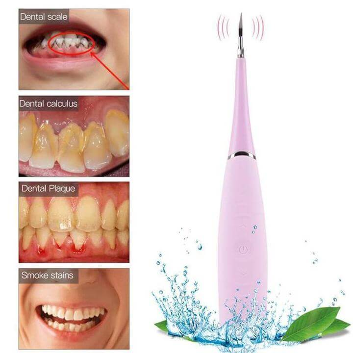 HollyWhite™ Tooth cleaning with Ultrasonic technology - Geniusly PH