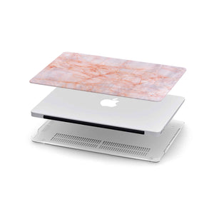Load image into Gallery viewer, Macbook Hard Shell Case - Pink Granite