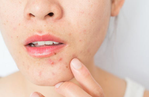 https://www.healthgrades.com/right-care/skin-hair-and-nails/boil-vs-pimple-how-to-tell-the-difference