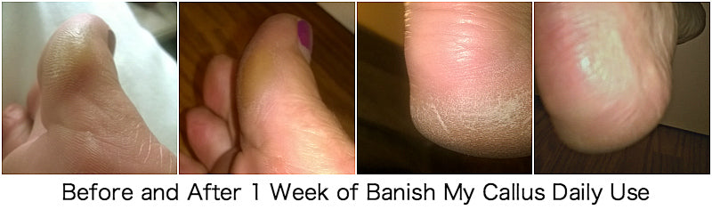 Customer results from one week using Banish My Callus