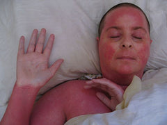 patient with red skin syndrome RSS