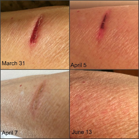 Time lapse photos of burn scar healing with emu oil
