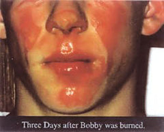 Boy with severe burns on face