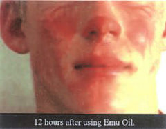 Using emu oil to heal burns
