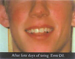 Burns healing after 4 days of emu oil applications