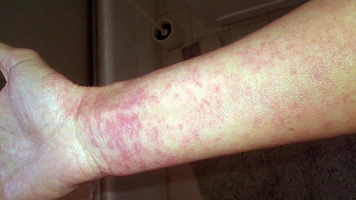 Burning and stinging sensation caused by TSWS