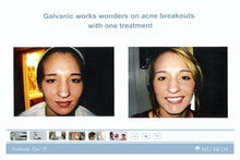 Load image into Gallery viewer, ageloc Galvanic Spa