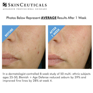 ACNE & SENSITIVITY CAUSED BY MASK - THE SOLUTION BUNDLE @ 15% OFF WITH FREE 15ml DISCOLORATION DEFENSE (TOTAL SAVING $392.90)