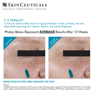 C E FERULIC 30 ml