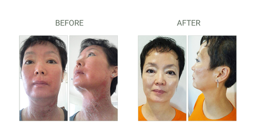 cell forte skin care serum and cream before and after