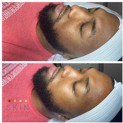 Microderm Abrasion before and after