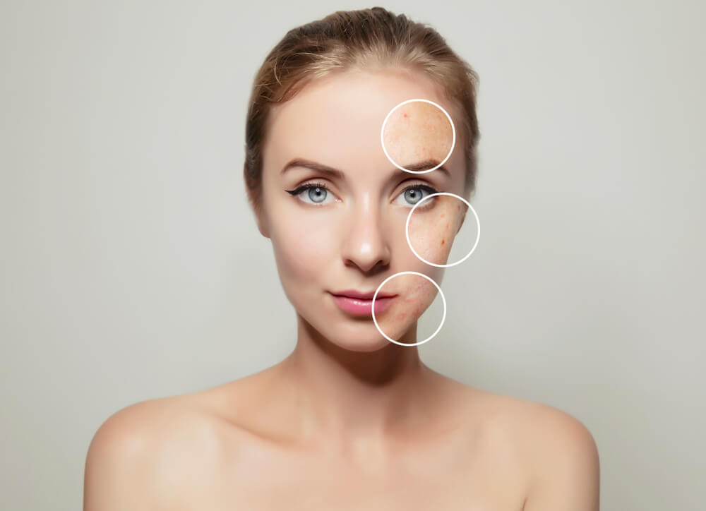 Gut Health And Acne The Link Between Digestion And Your Skin