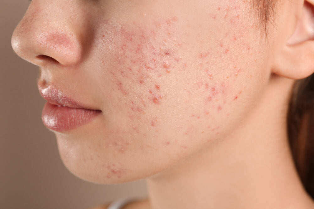How Gut Problems and Acne Are Related