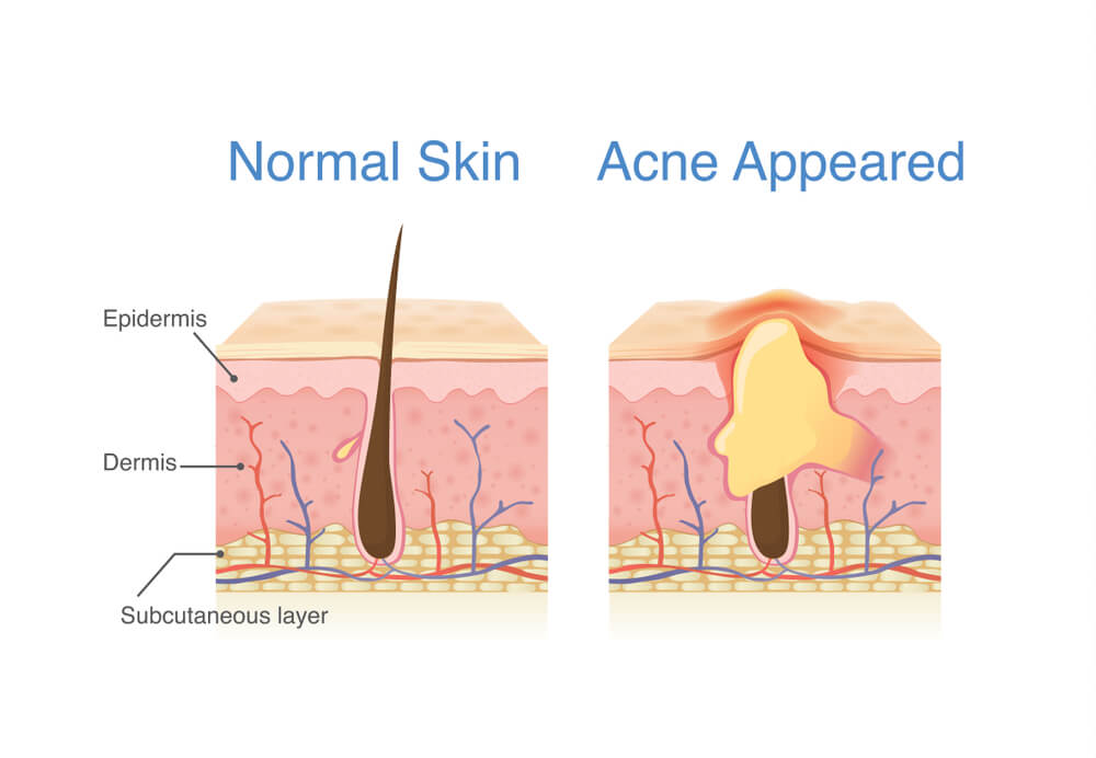 How acne forms on the skin