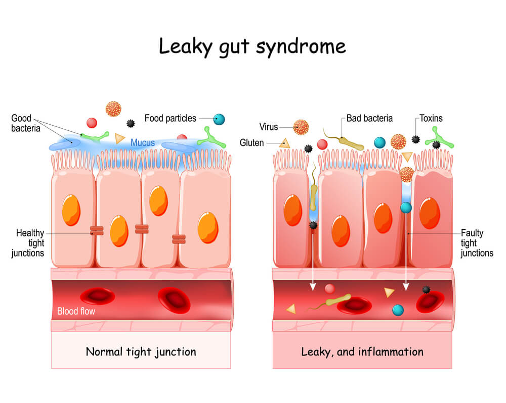 Leaky Gut and Acne