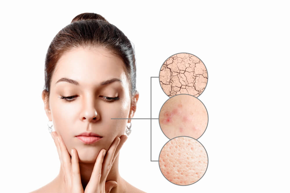 Skin Problems caused by gut health