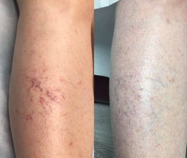 Sclerotherapy - Injection-Spa361 at The Dermatology and Skin Cancer Institute