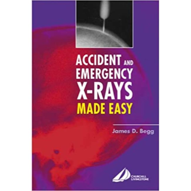 Accident and Emergency X-Rays Made Easy International Edition, BY J. Begg
