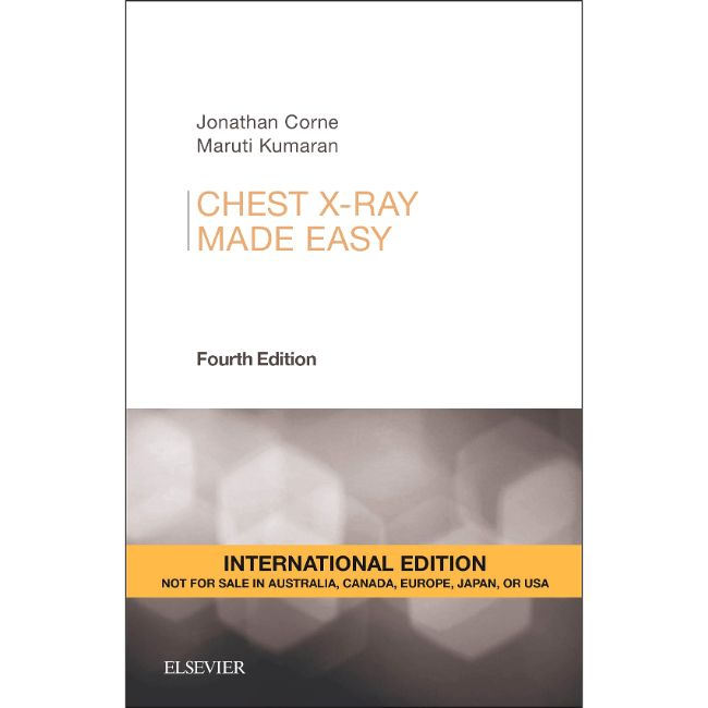 Chest X-Ray Made Easy, International Edition, 4ed BY J. Corne, M. Kumaran