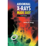 Abdominal X-Rays Made Easy, International Edition, 2ed BY J. Begg