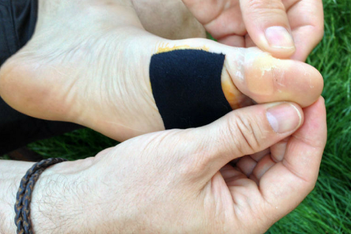 Leukotape for Blister Prevention