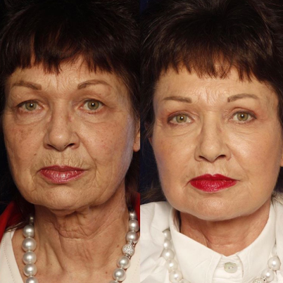 results of using Tulip TNF alone for Non-surgical Facial Rejuvenation