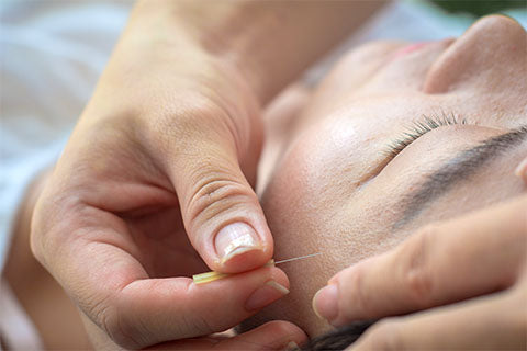 Anti-aging Facial Acupuncture