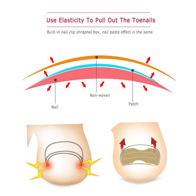 Glue-Free Toenail Patch