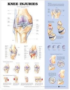 "A poster labelled ""Knee Injuries"" with multiple diagrams of different kinds of knee injuries."
