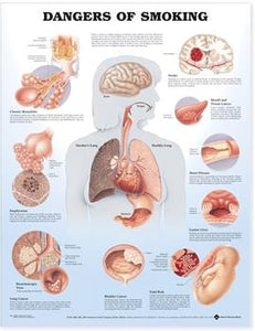 "A poster labelled ""Dangers of Smoking"" with multiple diagrams of the parts of the body affected by smoking."
