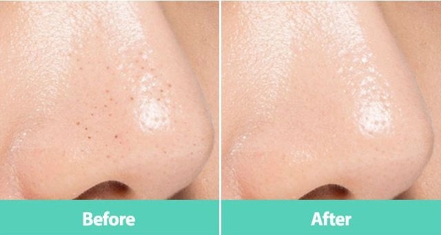 A'PIEU - Blackhead Dual Brush