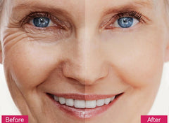 before and after using 5 in 1 skin rejuvenation kit