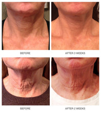 Load image into Gallery viewer, Derm Naturals Neck Rejuvenation Therapy