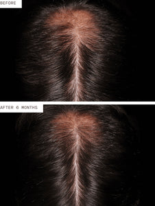 New! Nutrafol Hair Regrowth Men (3 Pack/3 Month Supply)