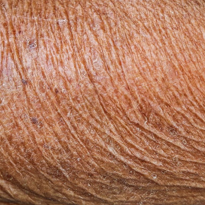 What Makes Skin Look Older?