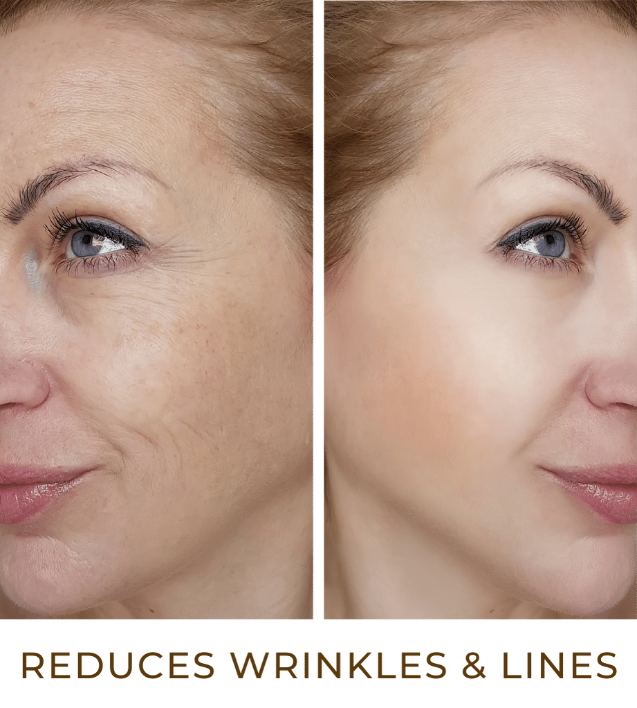 crocodile oil reduces wrinkles and fine lines