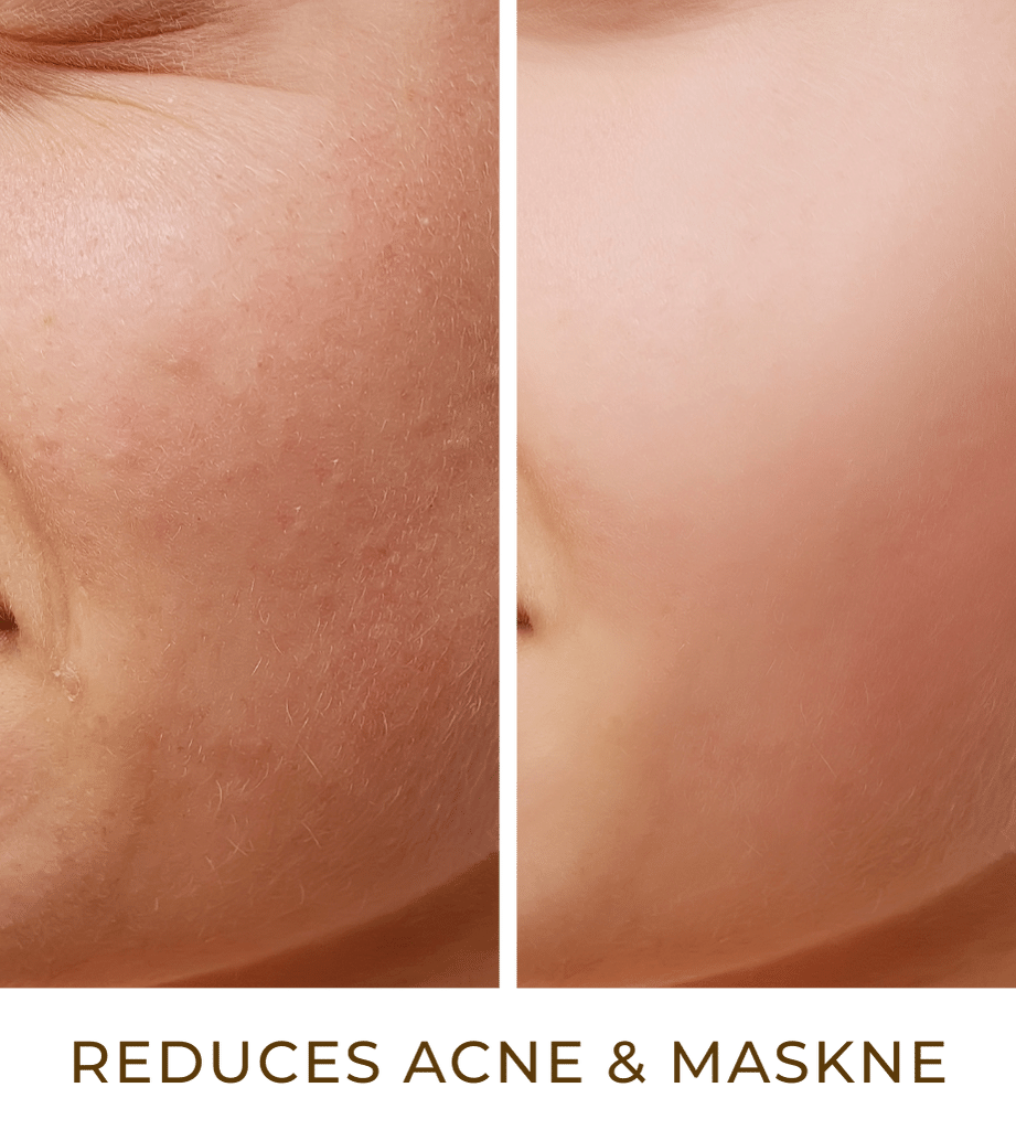 reduces acne and maskne