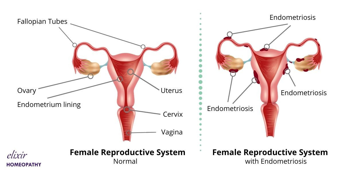 Female reproductive system of a patient suffering from Endometriosis.