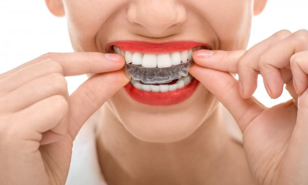 Dental Guards As Teeth Whitening Tray