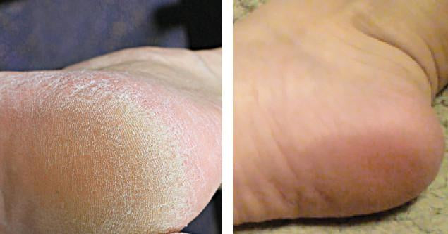 Softsole Express Exfoliating foot peel