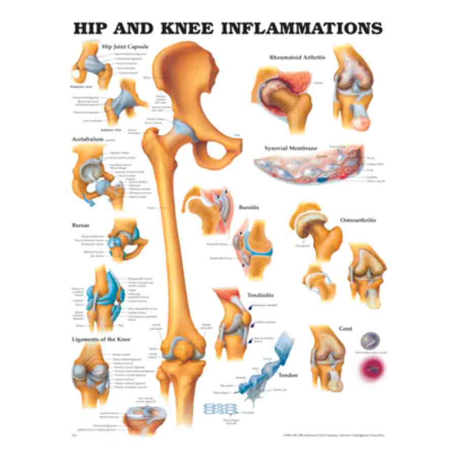 CHART HIP AND KNEE INFLAMMATION