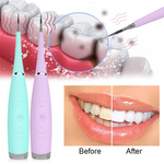 Bright Smile™ Ultrasonic Tooth Cleaner