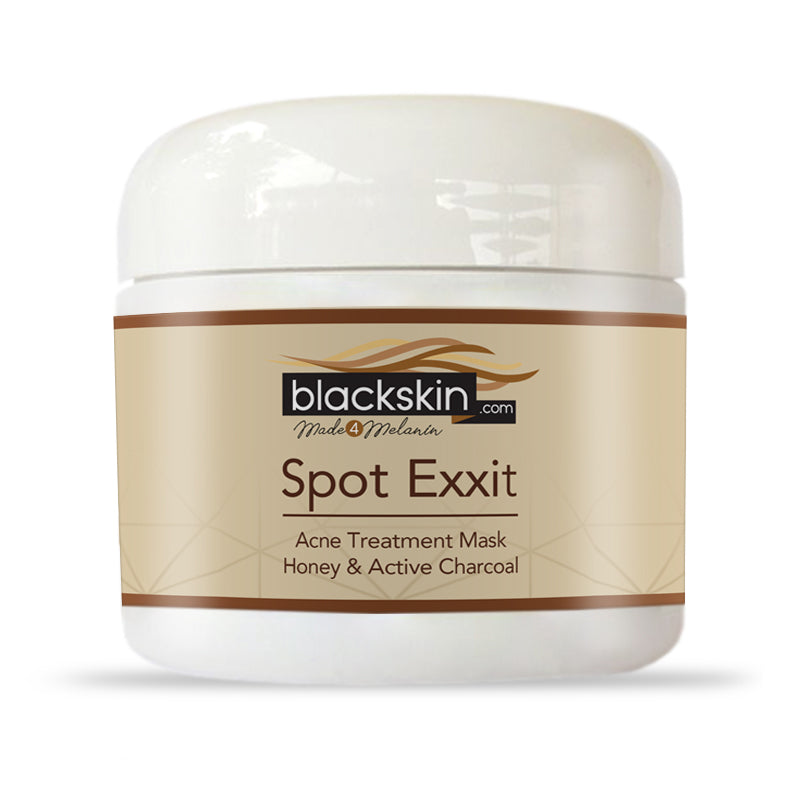 Spot Exxit Charcoal Acne Mud Mask with Honey Powder 8oz